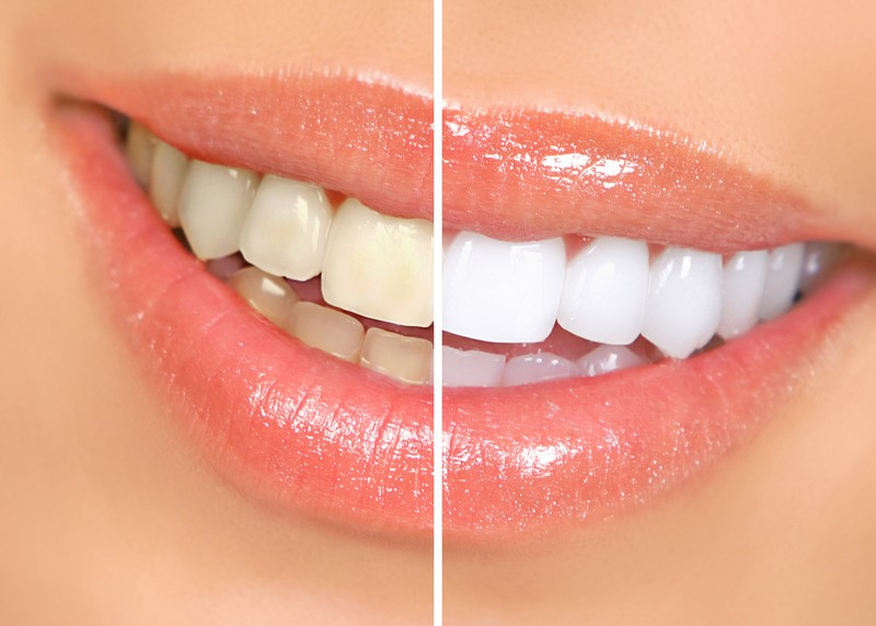 Teeth Whitening Glendale, AZ